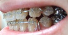 35歳からの歯列矯正奮闘記-081130-3