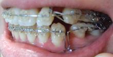 35歳からの歯列矯正奮闘記-080817-5